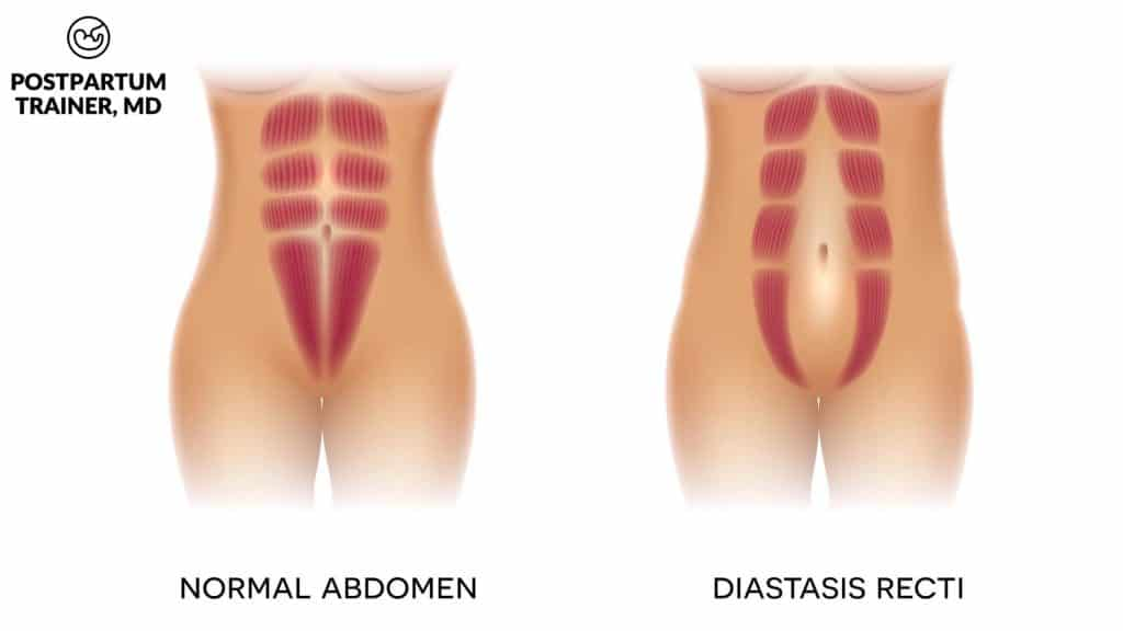 mommy-pooch-diastasis-recti