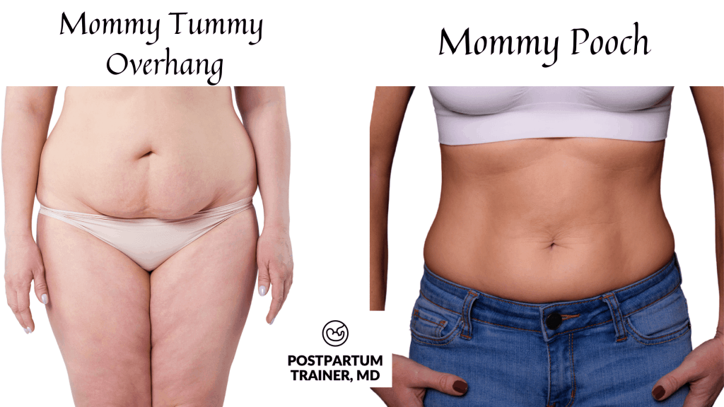 mommy-pooch-vs-mommy-tummy-overhang