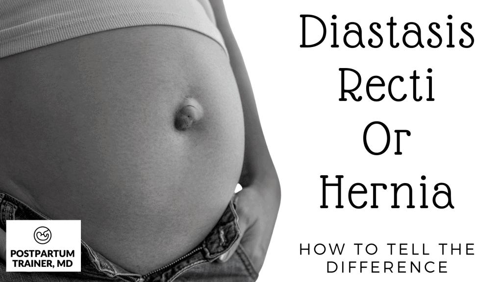 diastasis-recti-or-hernia