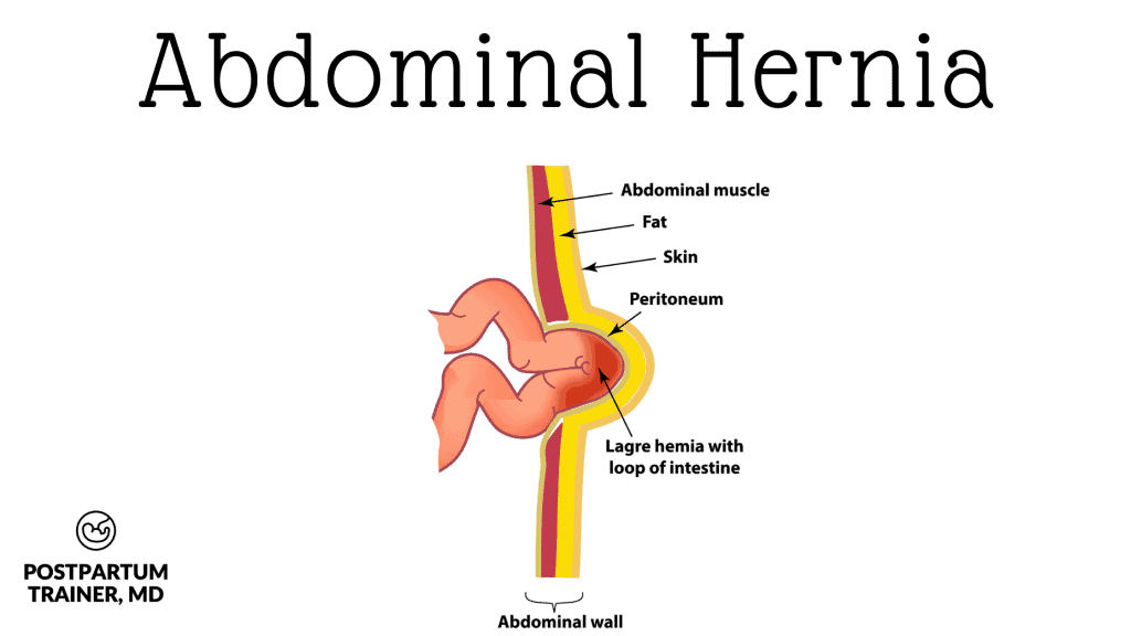 abdominal-hernia