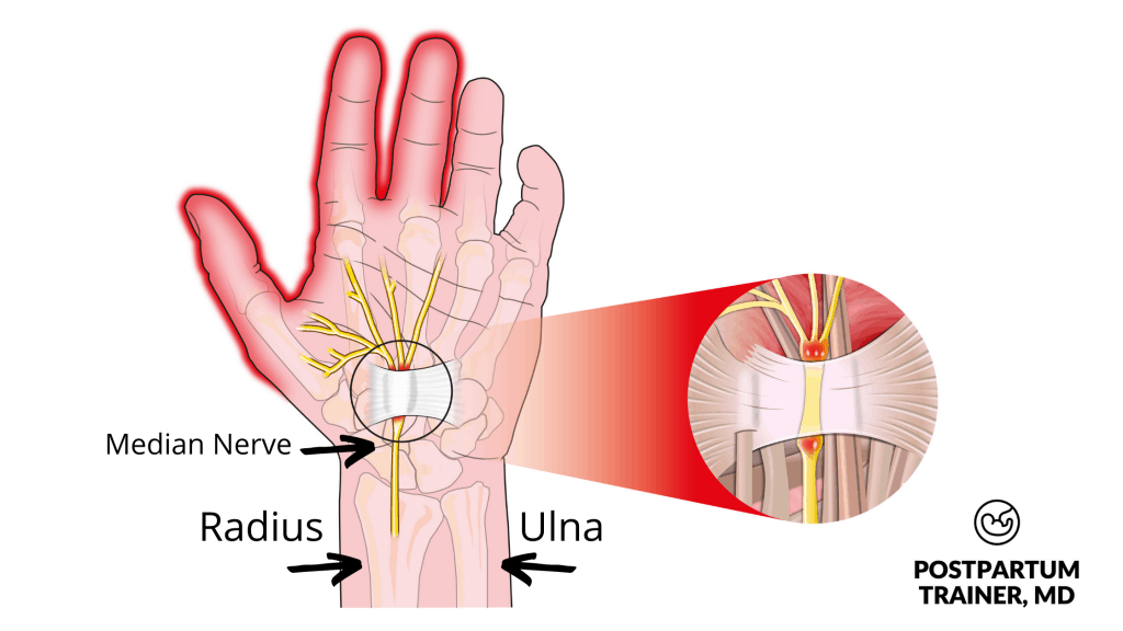 carpal-tunnel-syndrome-in-pregnancy