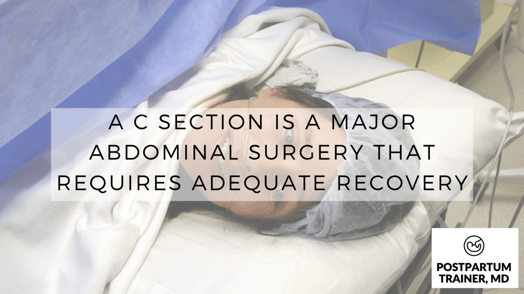 c-section-is-a-major-abdominal-surgery